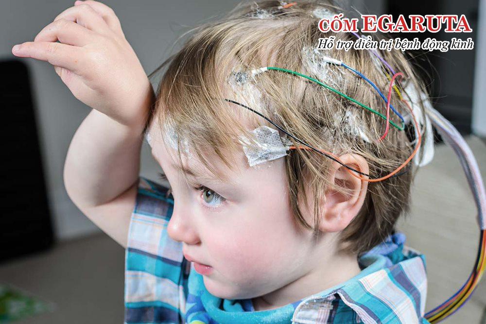60% đối tượng mắc bệnh động kinh là trẻ em